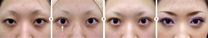 22歳(女性)二重埋没法幅広平行型2点固定の症例写真