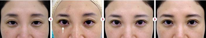 38歳(女性)切らない眼瞼下垂の症例写真