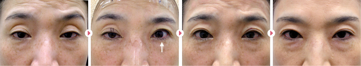 50歳(女性)切らない眼瞼下垂の症例写真