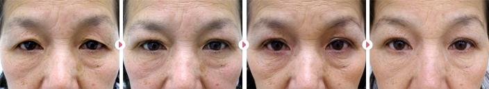 59歳(女性)二重埋没法たるみ2点固定の症例写真