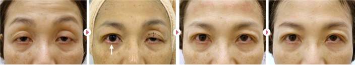 加齢+ハードコンタクトの眼瞼下垂モニター患者さんの症例写真です。