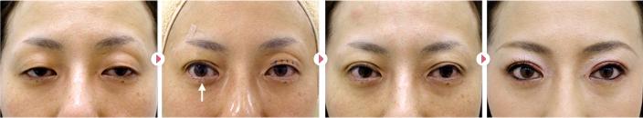 48歳(女性)中度眼瞼下垂の症例写真