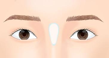 目の上のシワ・たるみ取り施術方法1
