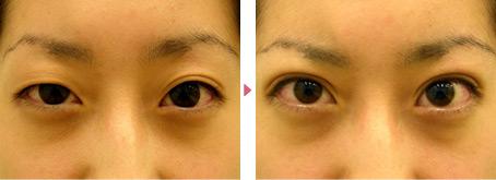 21歳(女性)患者様の幅広二重埋没平行型の症例写真