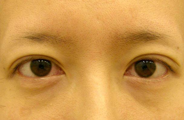 No.13 35歳切らない眼瞼下垂(左右差・幅広・下垂修正)術直後の症例写真