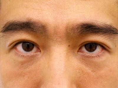 No.38 37歳男性 切らない眼瞼下垂 術後1週間の症例写真