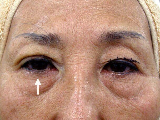 No.100 67歳 埋没式挙筋短縮前転法(たるみ・くぼみ・たくし上げ)術中の症例写真