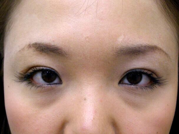 No.101 二重埋没法(末広型・下垂修正) 術後1ヶ月(メイクあり)の症例写真