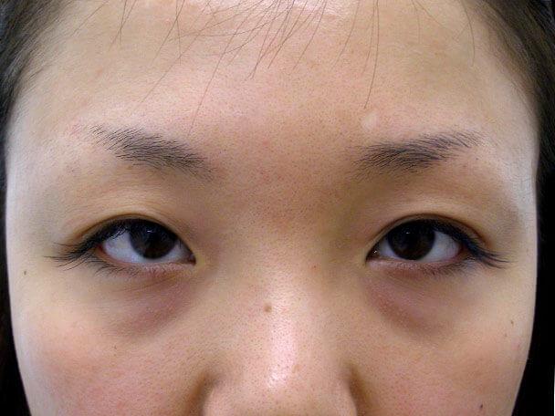 No.101 二重埋没法(末広型・下垂修正) 術前の症例写真