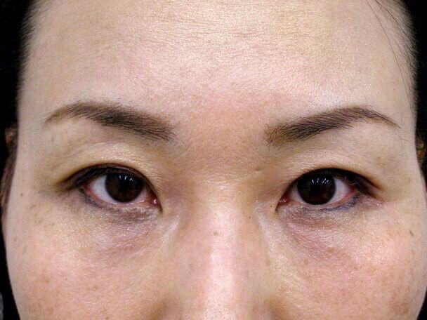 No.102 47歳 二重埋没法(末広型)術後1ヶ月(メイクあり)の症例写真
