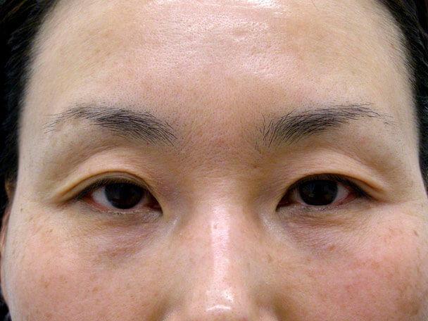 No.102 47歳 二重埋没法(末広型) 術前の症例写真