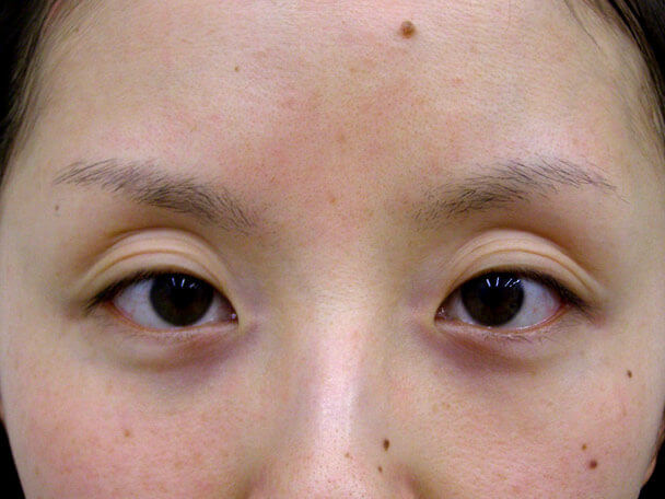 No.103 切らない眼瞼下垂 術前の症例写真