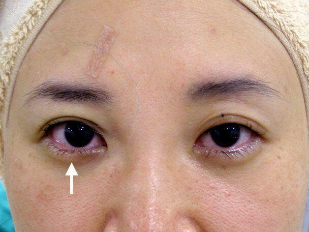 No.106 38歳 軽度切らない眼瞼下垂 術中の症例写真