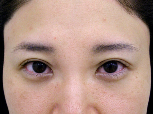 No.106 38歳 軽度切らない眼瞼下垂 術直後の症例写真