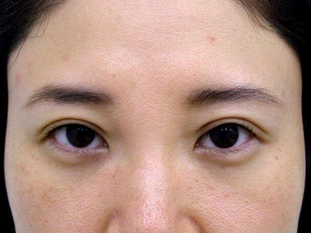 No.106 38歳 軽度切らない眼瞼下垂 術後2日の症例写真