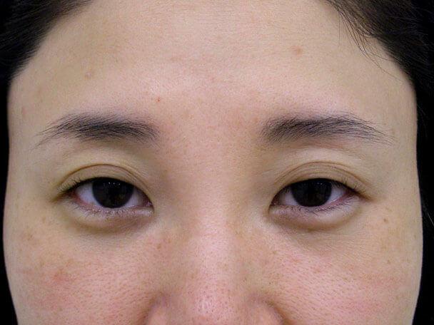 No.106 38歳 軽度切らない眼瞼下垂 術前 症例写真