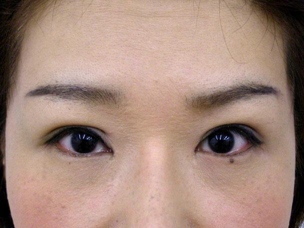 No.107 41歳 切らない眼瞼下垂 術後8日の症例写真
