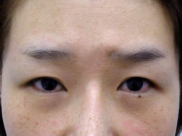 No.107 41歳 切らない眼瞼下垂 術前 症例写真