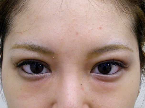 No.108 二重埋没法(幅広末広型)術後3日(メイクあり)の症例写真