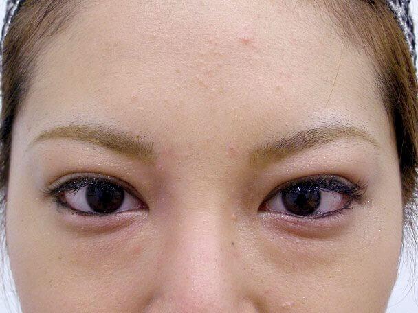 No.108 二重埋没法(幅広末広型)術後1ヶ月(メイクあり)の症例写真