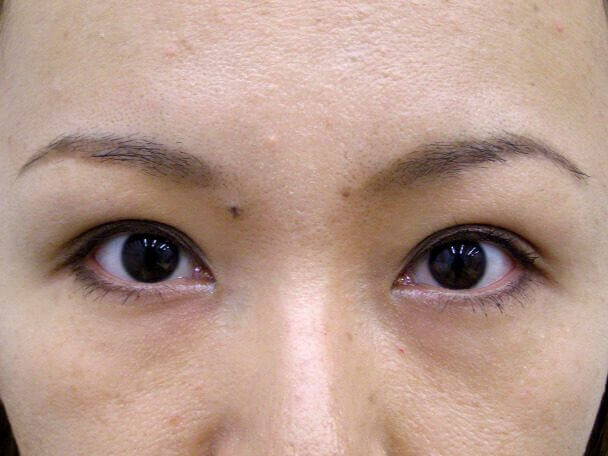 No.109 二重埋没法(幅狭平行型)術後2ヶ月(メイクあり)の症例写真