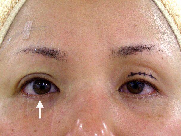 No.117 34歳 切らない眼瞼下垂 術中の症例写真