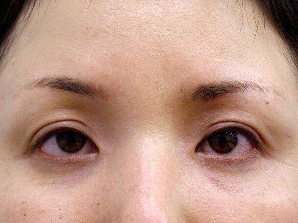 No.117 34歳 切らない眼瞼下垂 術後1ヶ月(メイクあり)の症例写真