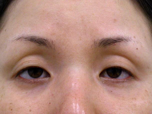No.117 34歳 切らない眼瞼下垂 術前 症例写真