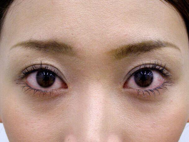 No.118 25歳二重埋没法(幅広平行型・下垂修正)術後1ヶ月(メイクあり)の症例写真