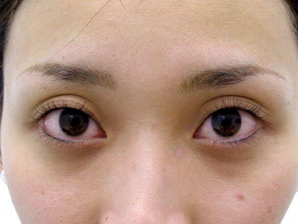 No.118 25歳二重埋没法(幅広平行型・下垂修正)術前 症例写真