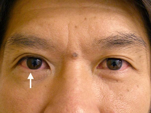 No.120 二重埋没法(片目)たるみ・下垂修正 術直後の症例写真