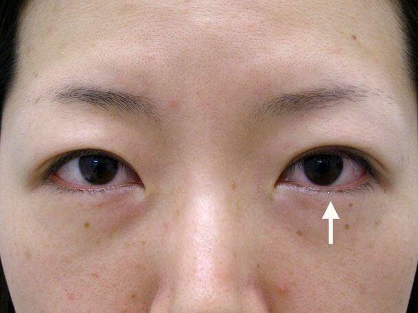 No.123 29歳 二重埋没法(幅狭末広型・左目)術直後の症例写真