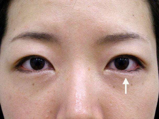 No.123 29歳 二重埋没法(幅狭末広型・左目)術後1週間の症例写真