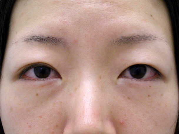 No.123 29歳 二重埋没法(幅狭末広型・片目)術前 症例写真