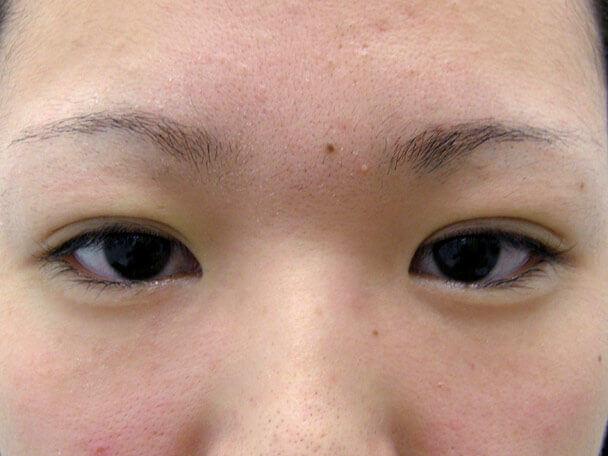 No.125 19歳二重埋没法(末広型)術直後の症例写真