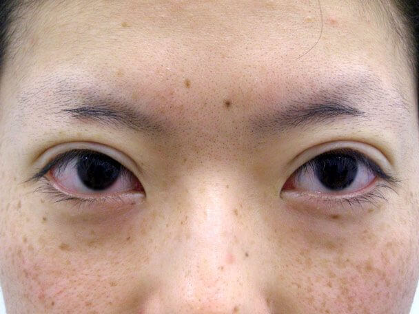 No126 25歳 真崎式二重 術直後の症例写真