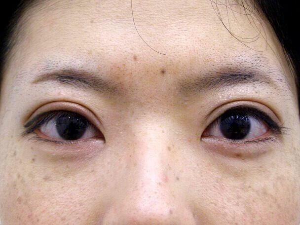 No126 25歳 真崎式二重 術後1週間(メイクあり)の症例写真