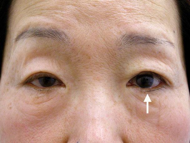 No.128 64歳 切らない眼瞼下垂 術直後の症例写真
