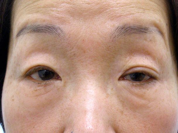 No.128 切らない眼瞼下垂(片目)術前 症例写真