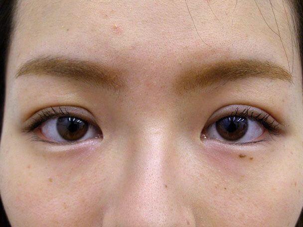 No132 二重埋没(幅広二重・皮膚・脂肪厚い)術後4日の症例写真