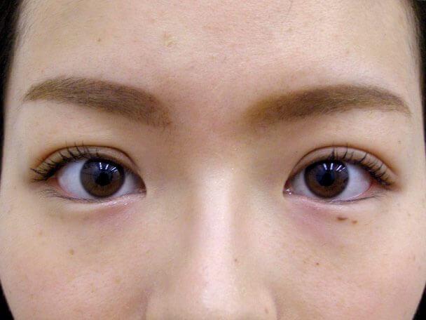 No132 二重埋没(幅広二重・皮膚・脂肪厚い)術後1週間の症例写真