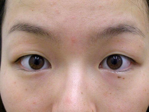 No132 二重埋没(幅広二重・皮膚・脂肪厚い)術前 症例写真