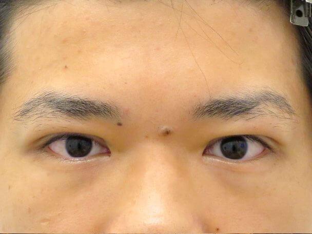 No133 男性 二重埋没法(幅狭二重・末広型・皮膚・脂肪厚い) 術直後の症例写真