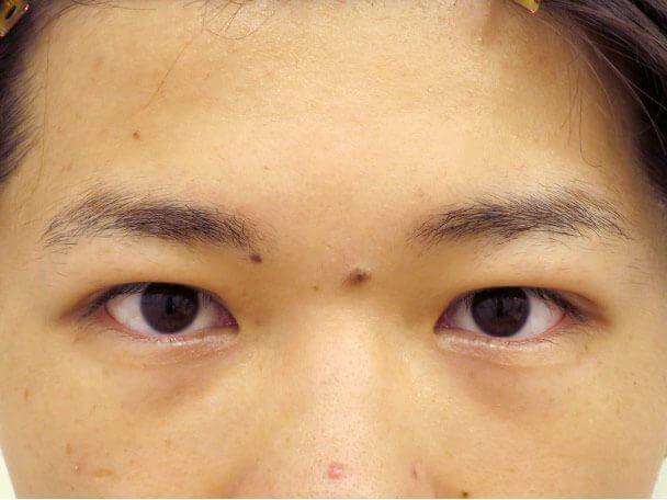 No133 男性 二重埋没法(幅狭二重・末広型・皮膚・脂肪厚い) 術後1ヶ月の症例写真