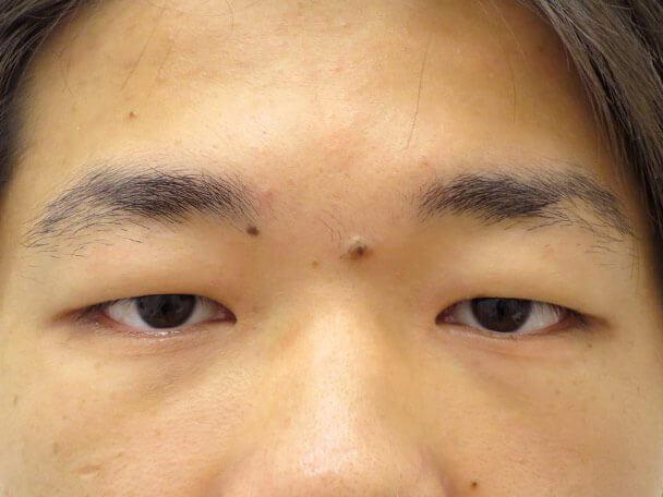 No133 男性 二重埋没法(幅狭二重・末広型・皮膚・脂肪厚い) 術前 症例写真