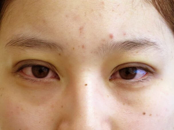No.135 20歳 二重埋没法(末広型) 術直後の症例写真