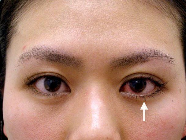 No.39 27歳 二重埋没法(左目を右側に合わせた治療)術直後の症例写真