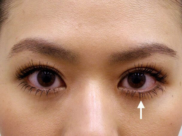 No.39 27歳 二重埋没法(左目を右側に合わせた治療)術後3日の症例写真