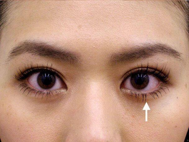No.39 27歳 二重埋没法(左目を右側に合わせた治療)術後1週間の症例写真