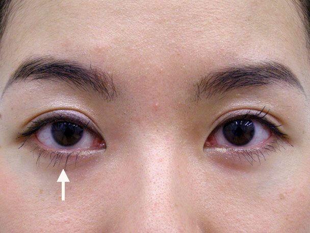 No.68 21歳 右目の切らない眼瞼下垂 術後1週間(メイクあり)症例写真